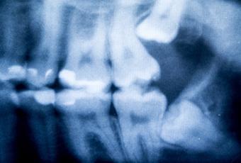 親知らず 抜歯 後 痛い